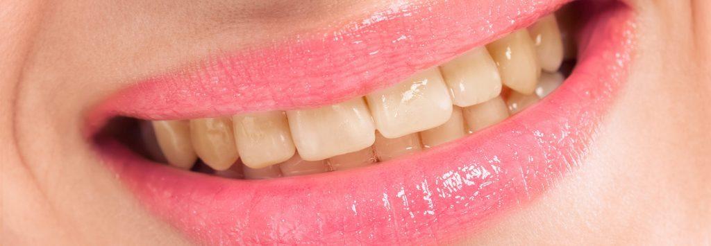Ortodonzia Estetica Cernusco Bleaching