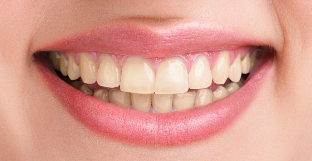 Dentista Sbiancamento Denti Cernusco