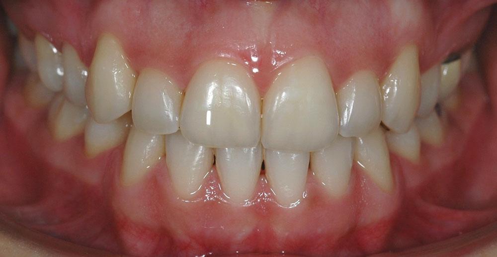 Dentista Ortodonzia Cernusco