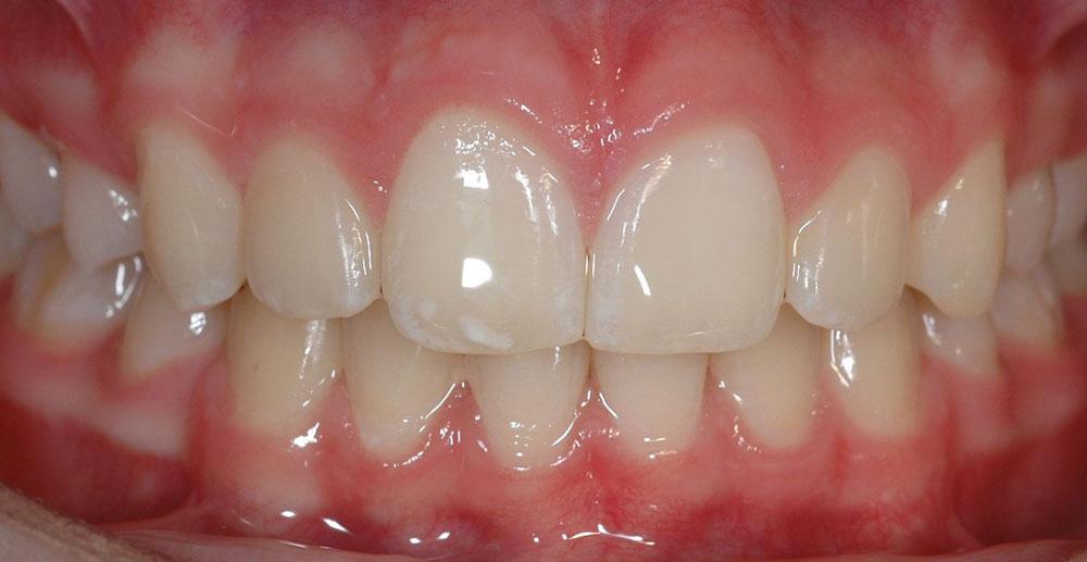 Dentista Bleaching Cernusco