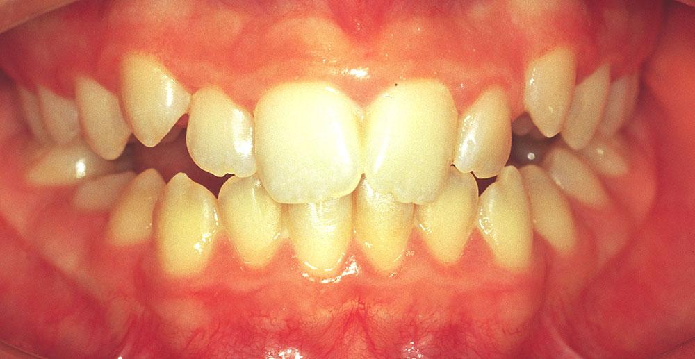 Dentista Riallineamento Denti Cernusco