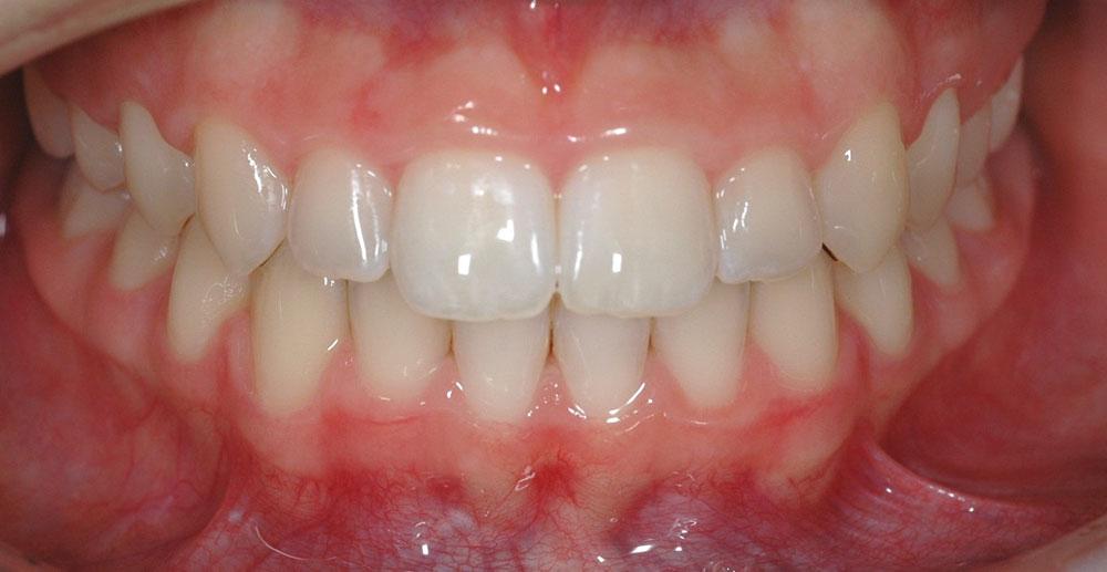 Dentista Ortodonzia Estetica Cernusco
