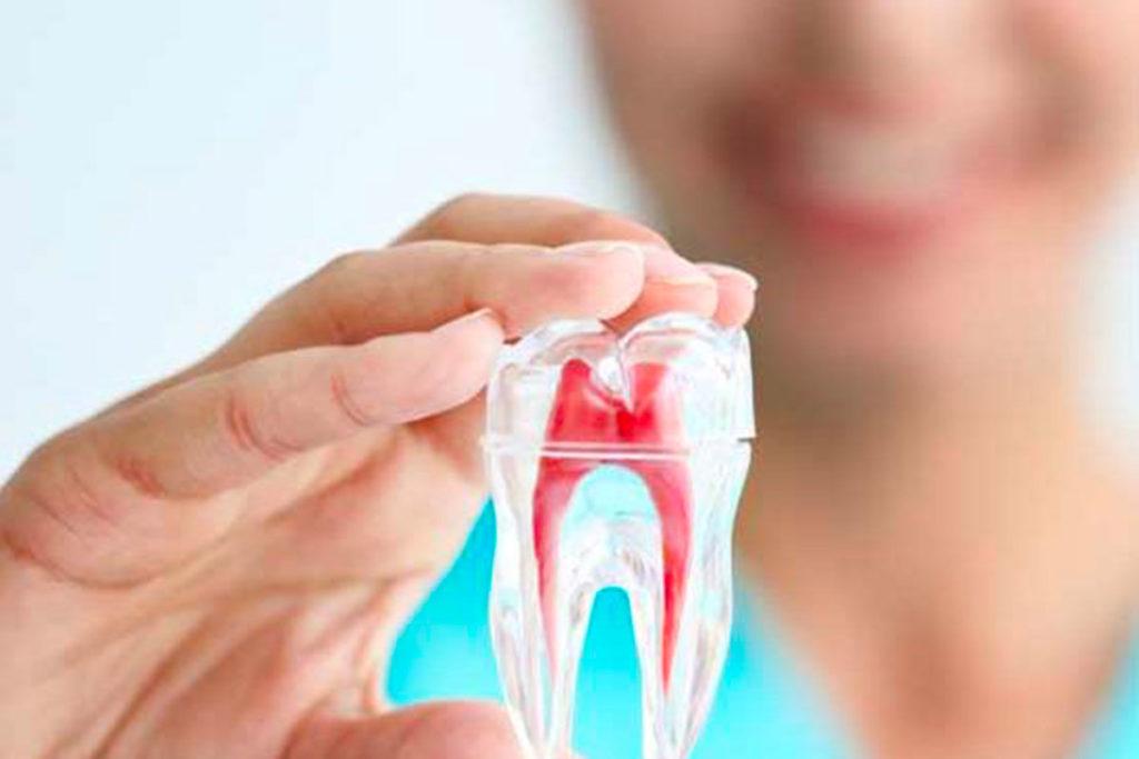 Endodonzia Cernusco