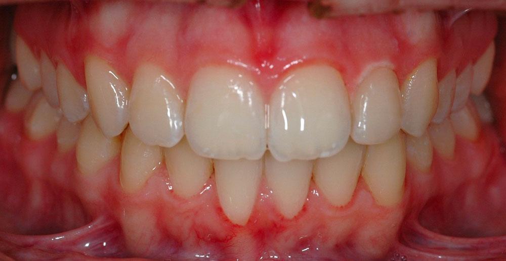 Dent Bleaching Cernusco