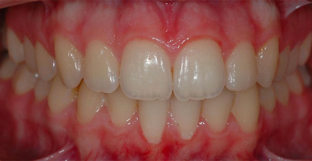 Sbiancamento Dentale Cernusco