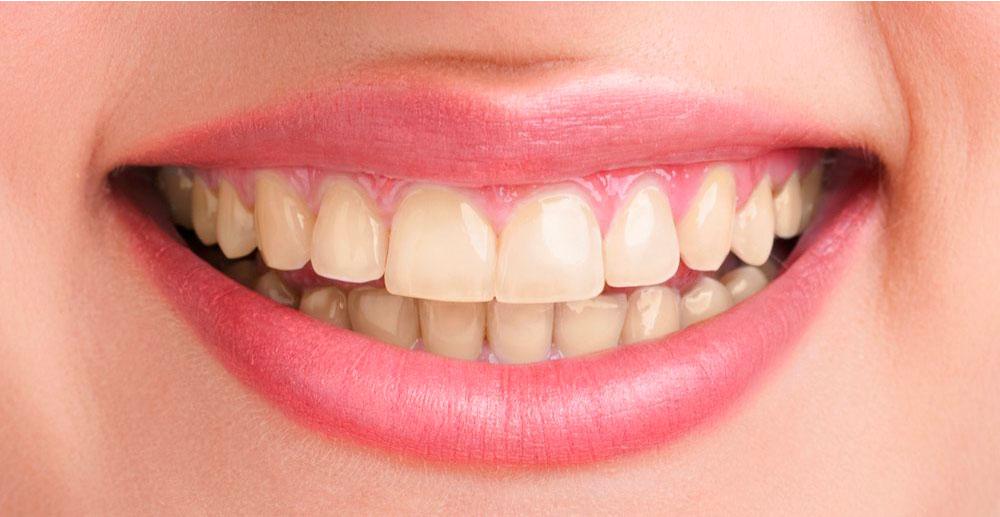 Prevenzione ed Igiene Orale Cernusco